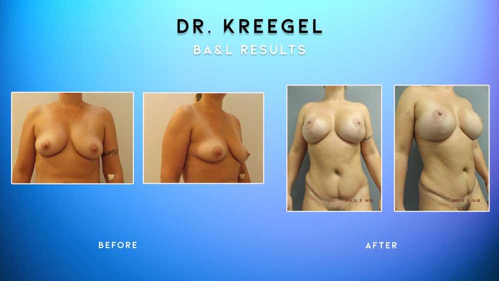 Before_After-Patient-1-BA&L
