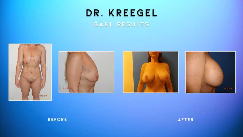 Before_After-Patient-2-BA&L