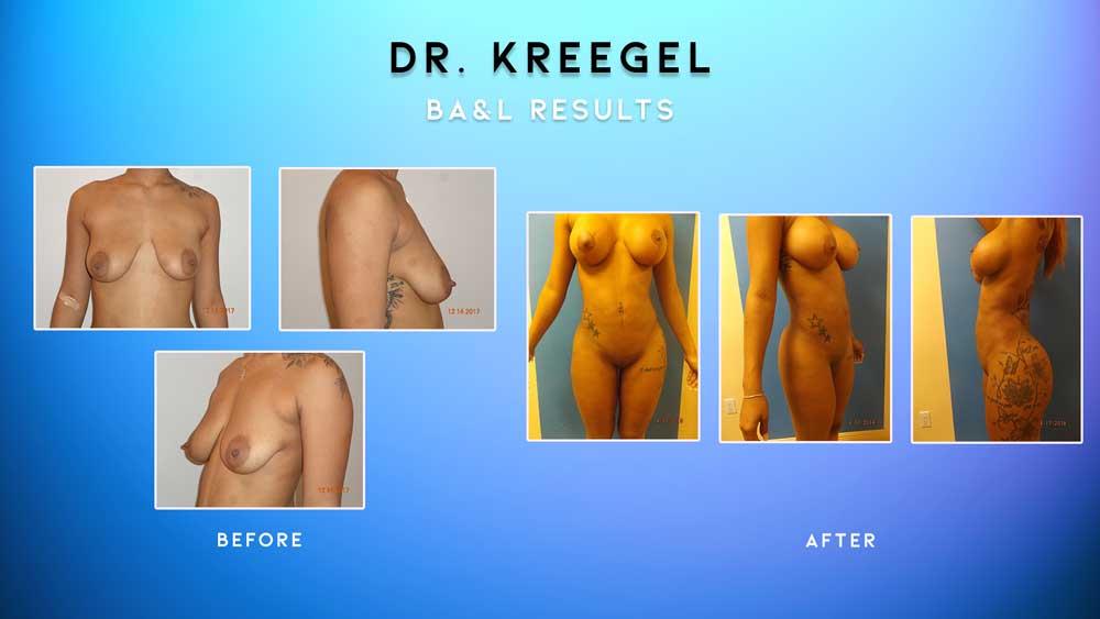Before_After-Patient-3-BA&L