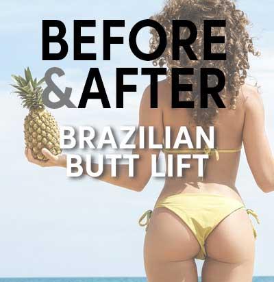 brazilian-butt-lift-surgery-before-after